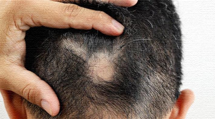 Saçkıran bir deri hastalığı mıdır, yoksa meslek hastalığı mı? - Emre Gürcanlı